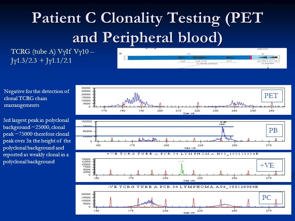 Patient C Clonality Testing (PET and Peripheral blood)