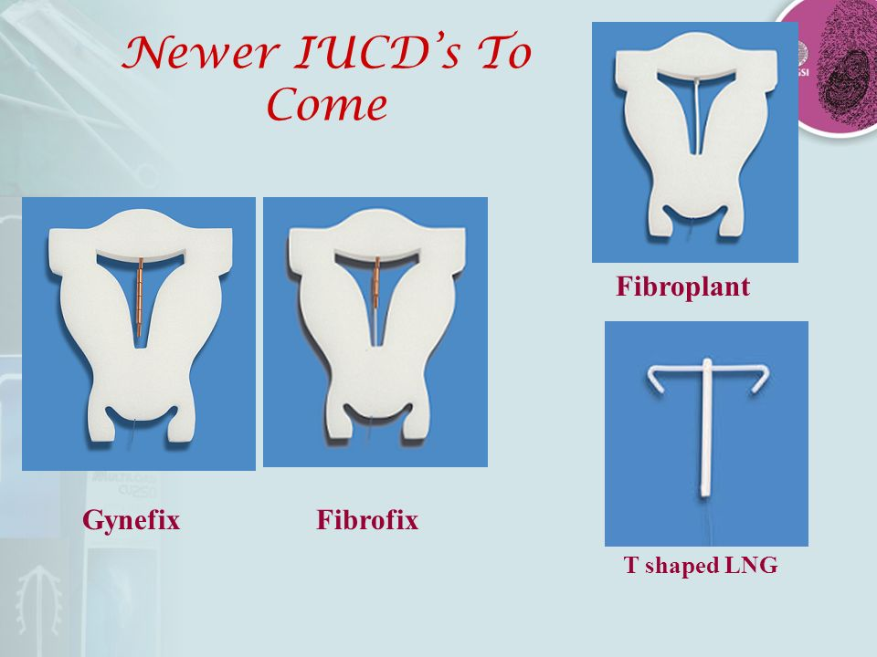 Newer IUCD's To Come Fibroplant Gynefix Fibrofix T shaped LNG