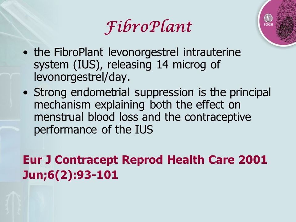 FibroPlant the FibroPlant levonorgestrel intrauterine system (IUS), releasing 14 microg of levonorgestrel/day.