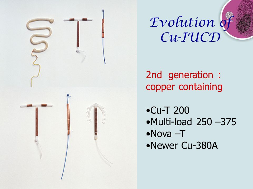 Evolution of Cu-IUCD 2nd generation : copper containing Cu-T 200