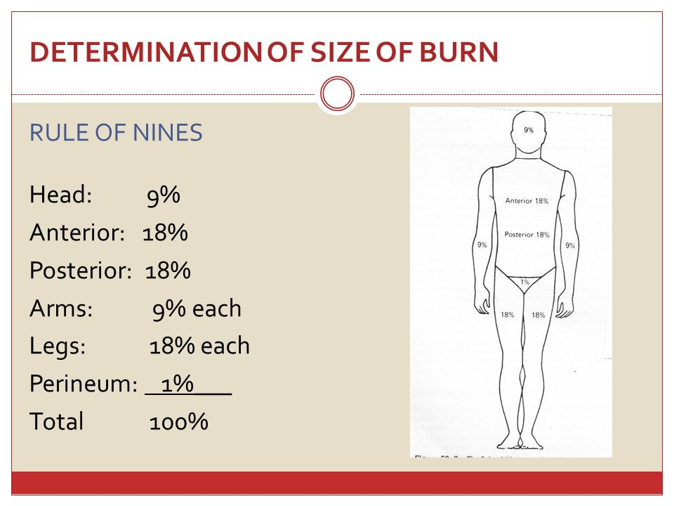 DETERMINATION OF SIZE OF BURN