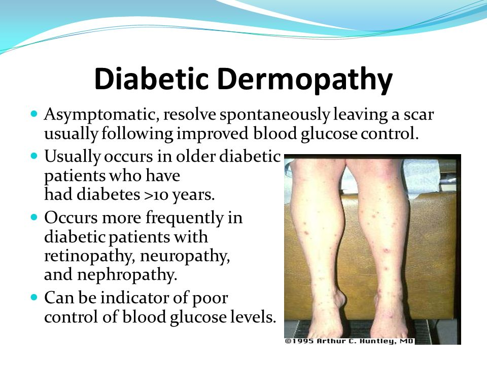 Diabetic Dermopathy Asymptomatic, resolve spontaneously leaving a scar usually following improved blood glucose control.