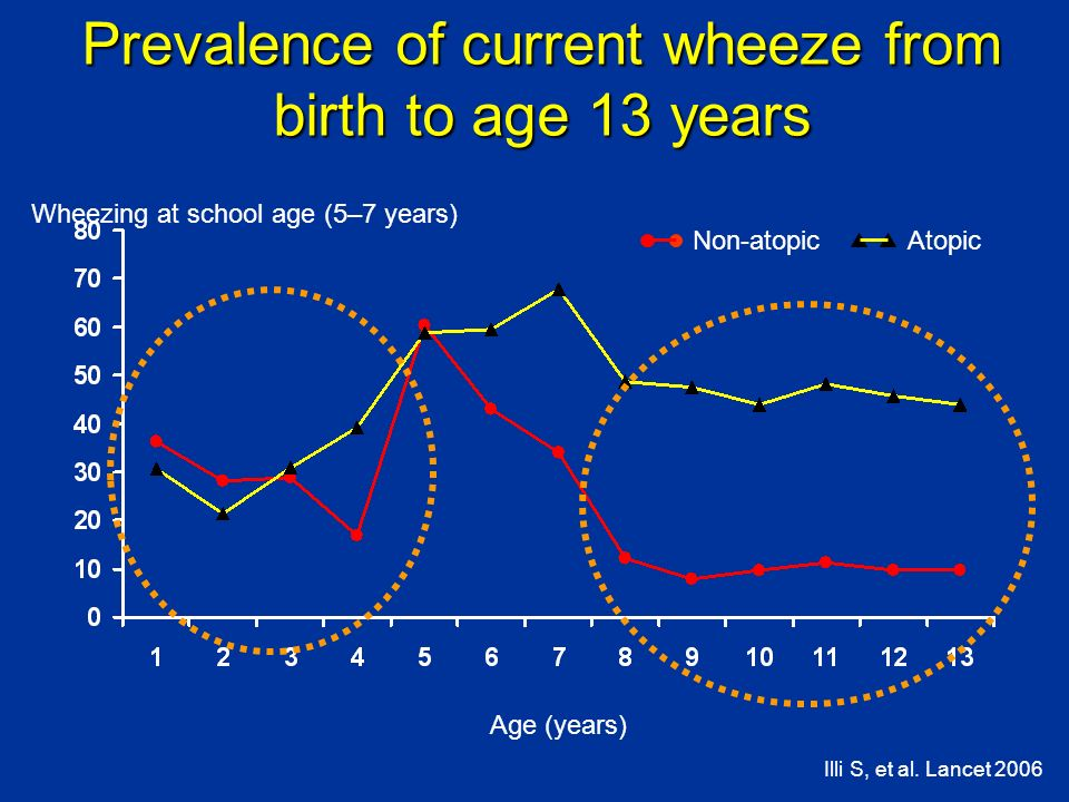 Prevalence of current wheeze from birth to age 13 years