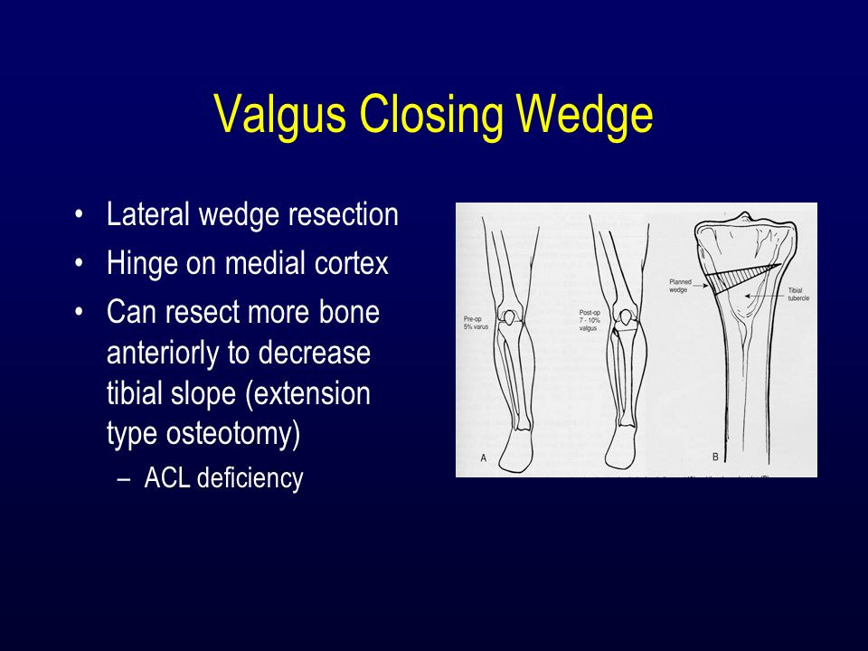 Valgus Closing Wedge Lateral wedge resection Hinge on medial cortex