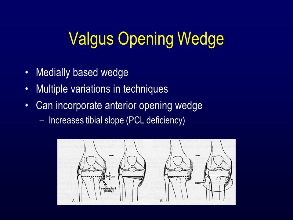 Valgus Opening Wedge Medially based wedge