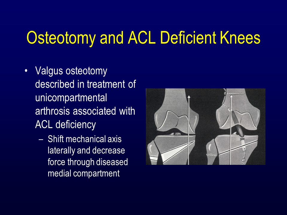 Osteotomy and ACL Deficient Knees