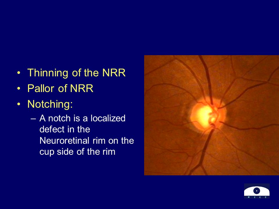 Thinning of the NRR Pallor of NRR Notching: