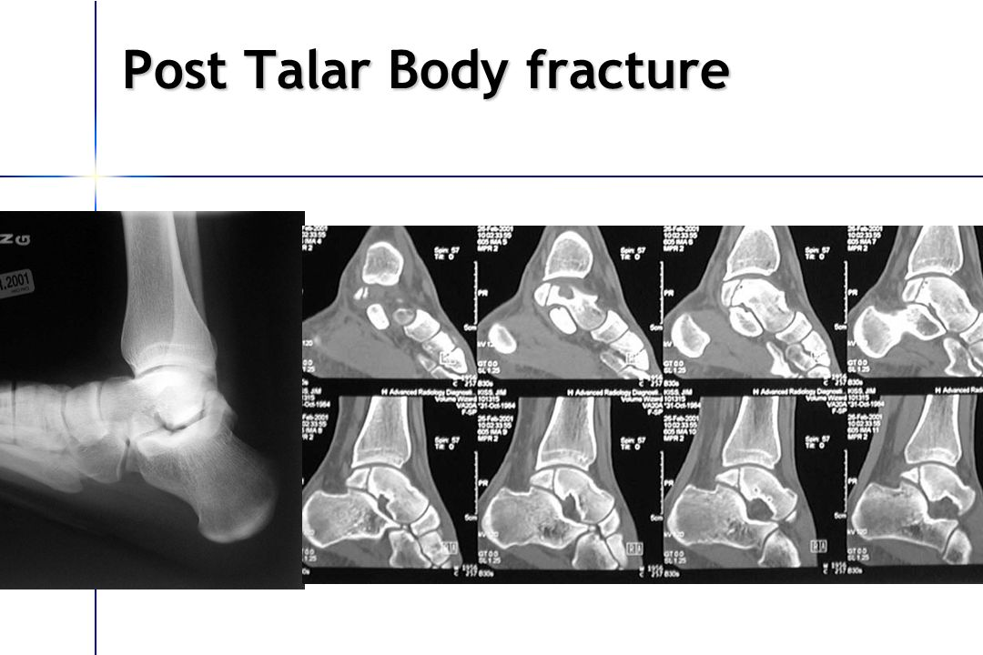 Post Talar Body fracture