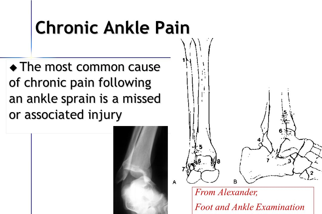 Chronic Ankle Pain The most common cause of chronic pain following