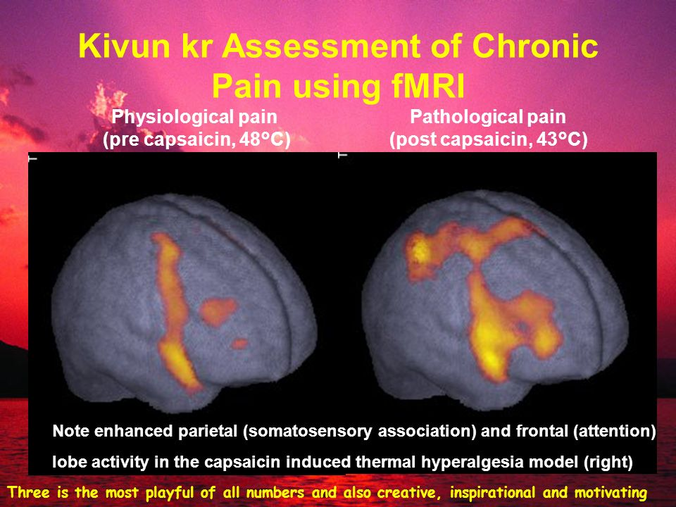 Kivun kr Assessment of Chronic Pain using fMRI