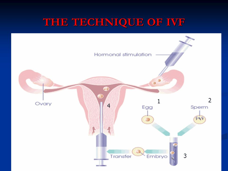 the technique of ivf /03/2017