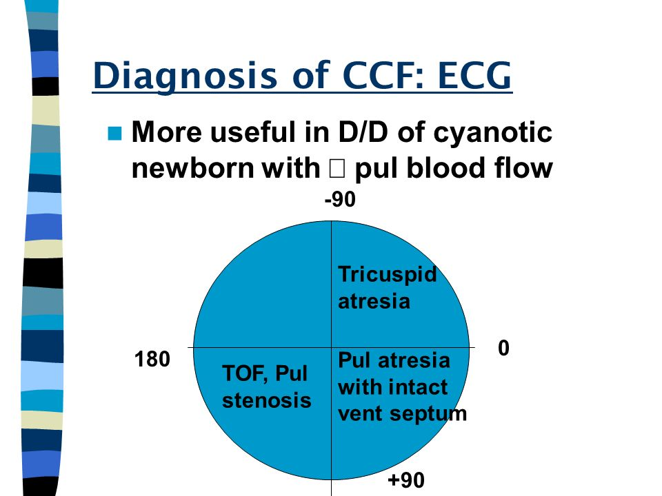 Diagnosis of CCF: ECG More useful in D/D of cyanotic newborn with ¯ pul blood flow Tricuspid.