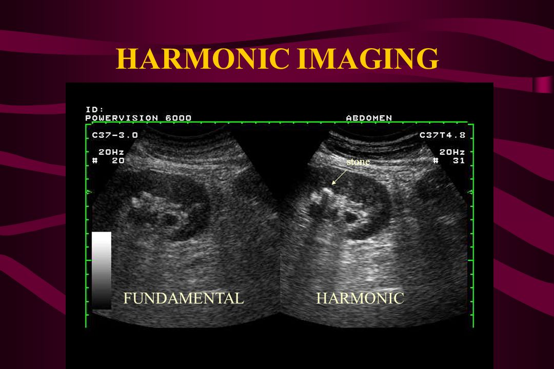 HARMONIC IMAGING stone FUNDAMENTAL HARMONIC
