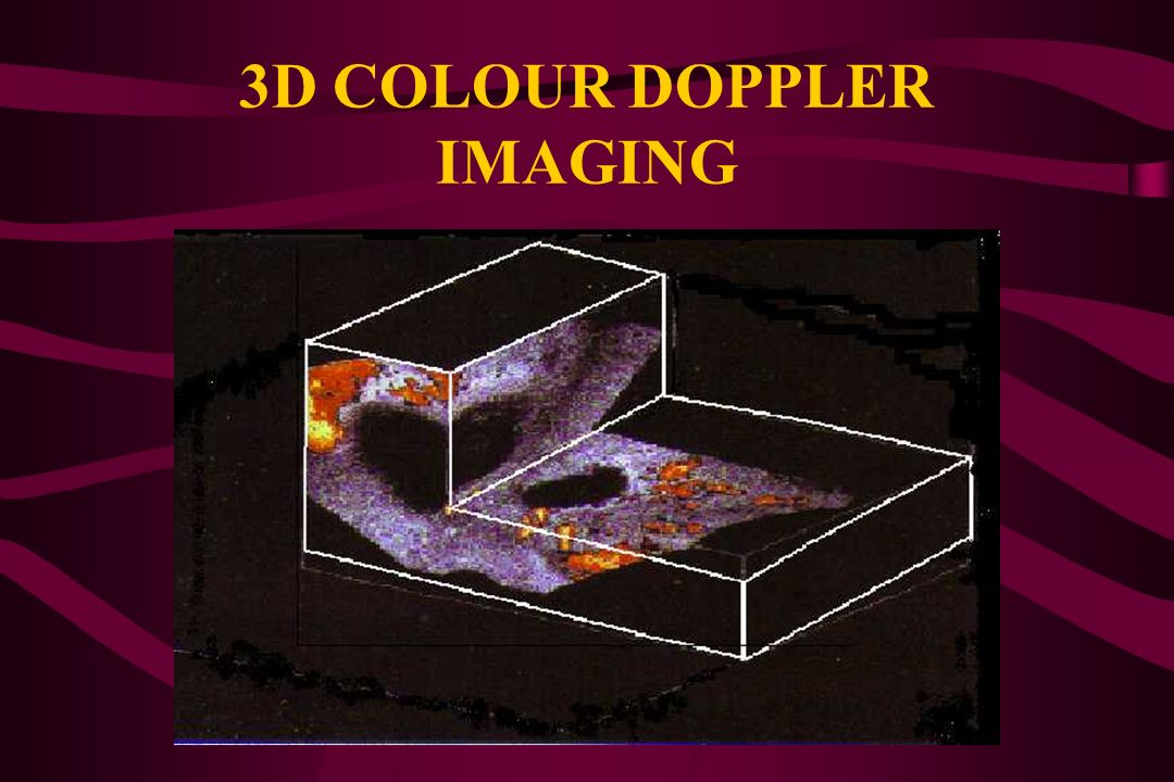 3D COLOUR DOPPLER IMAGING