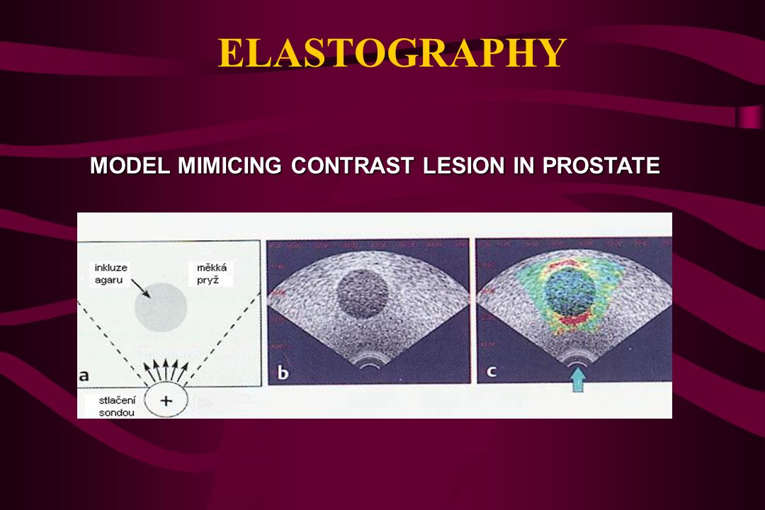 ELASTOGRAPHY MODEL MIMICING CONTRAST LESION IN PROSTATE