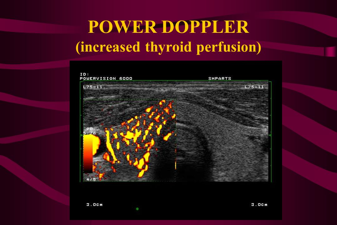 POWER DOPPLER (increased thyroid perfusion)