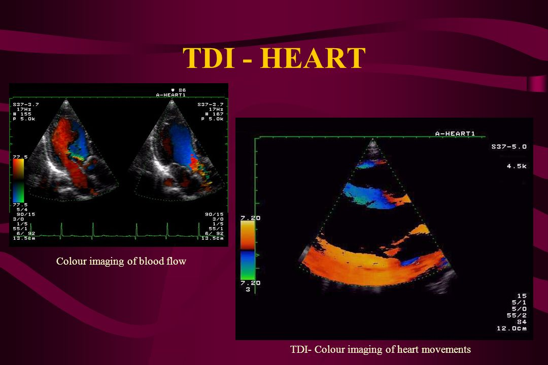 TDI - HEART Colour imaging of blood flow