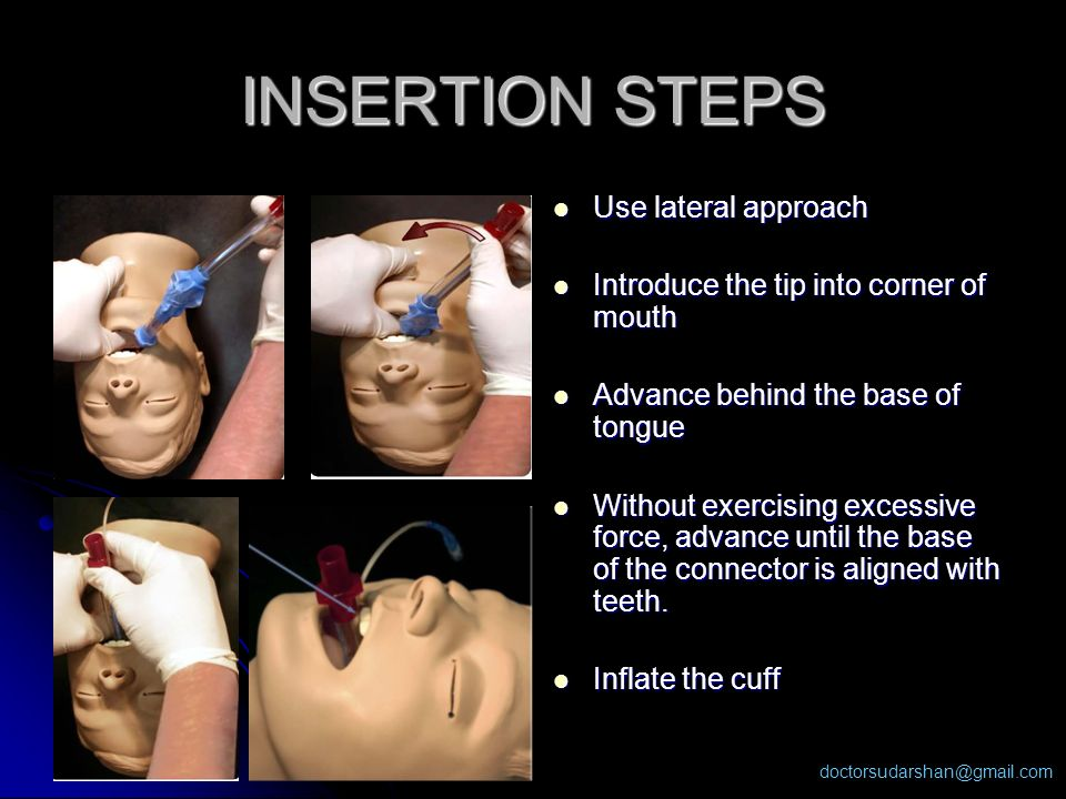 INSERTION STEPS Use lateral approach