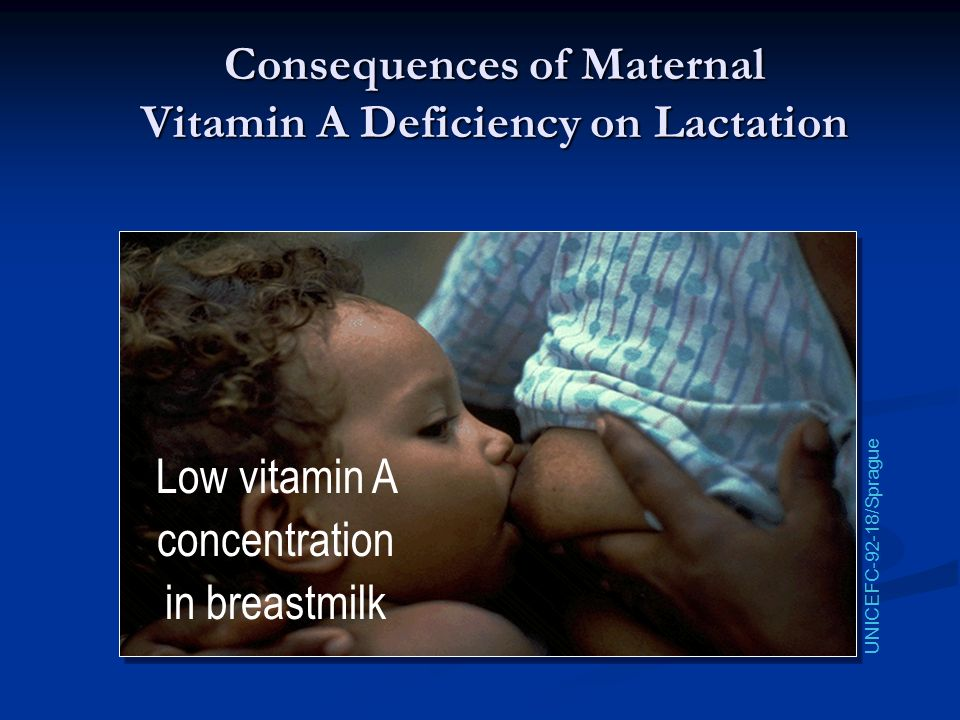 Consequences of Maternal Vitamin A Deficiency on Lactation