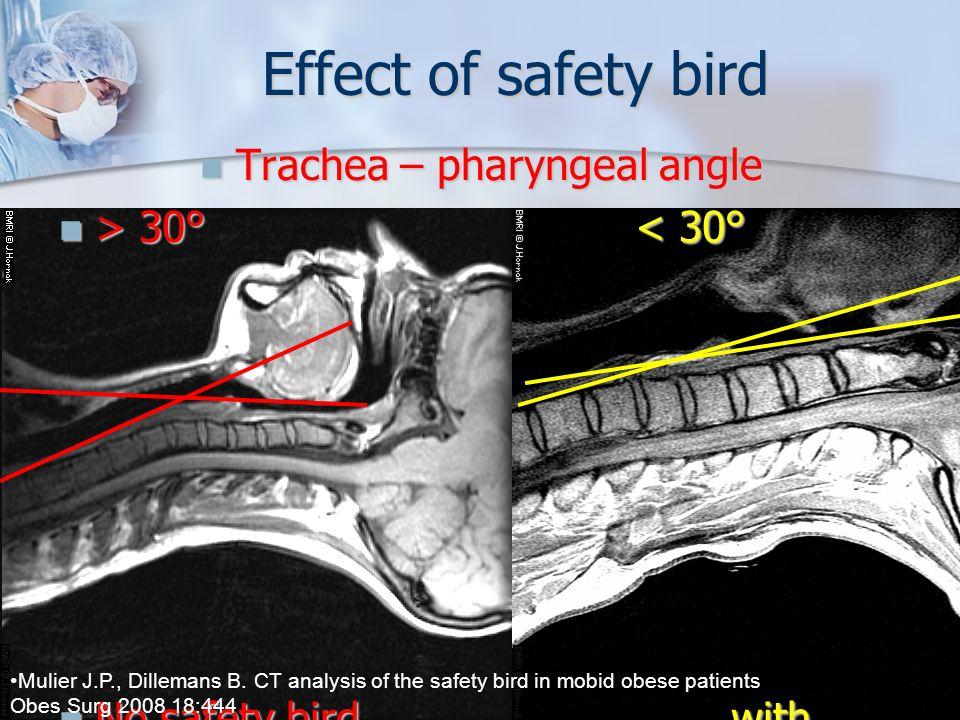Effect of safety bird Trachea – pharyngeal angle > 30° < 30°