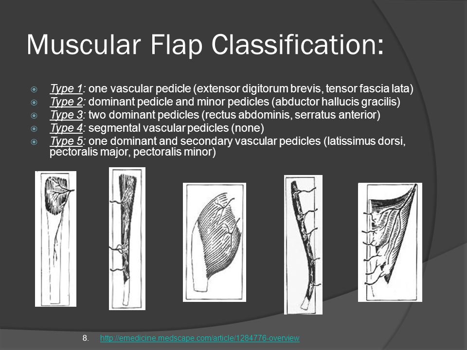 Muscular Flap Classification: