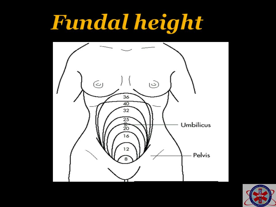 Fundal height