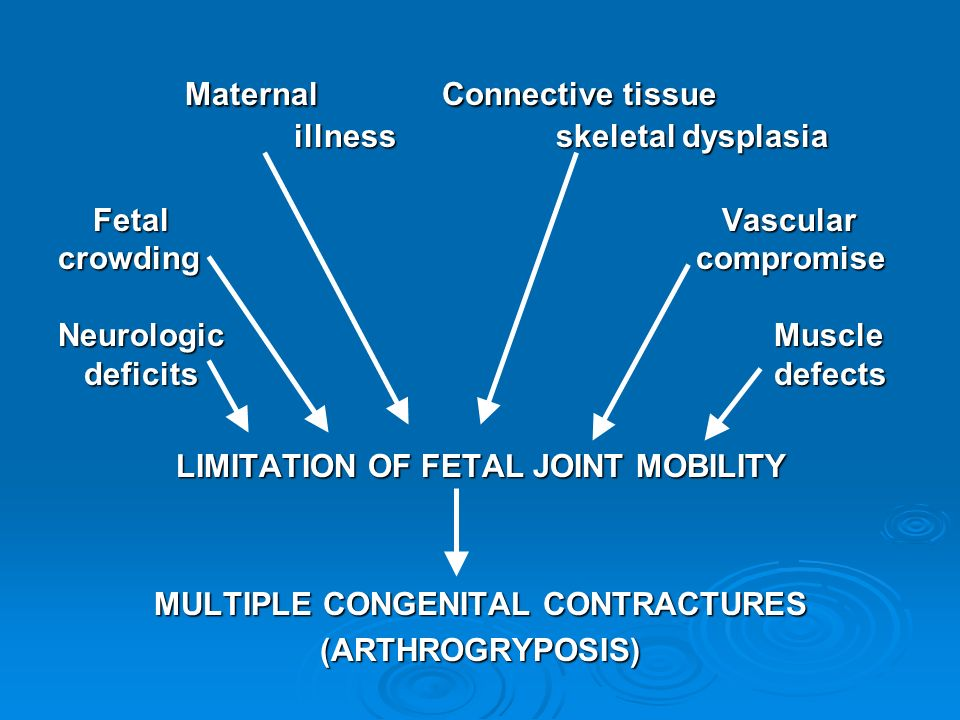 LIMITATION OF FETAL JOINT MOBILITY MULTIPLE CONGENITAL CONTRACTURES