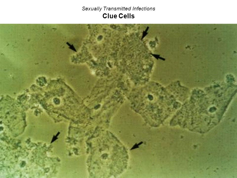 Sexually Transmitted Infections Clue Cells