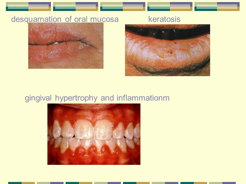 desquamation of oral mucosa keratosis