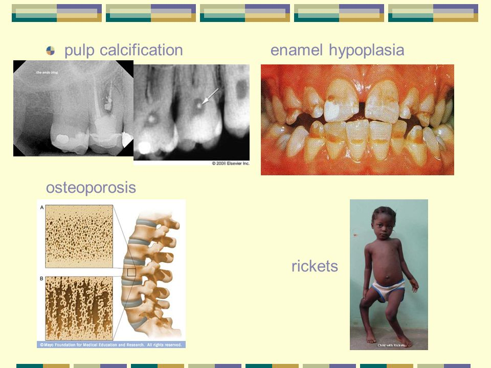 pulp calcification enamel hypoplasia
