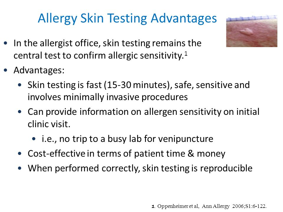 Allergy Skin Testing Advantages