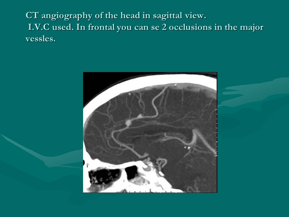 CT angiography of the head in sagittal view. I. V. C used