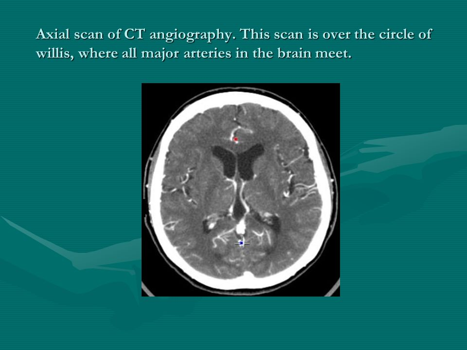 Axial scan of CT angiography