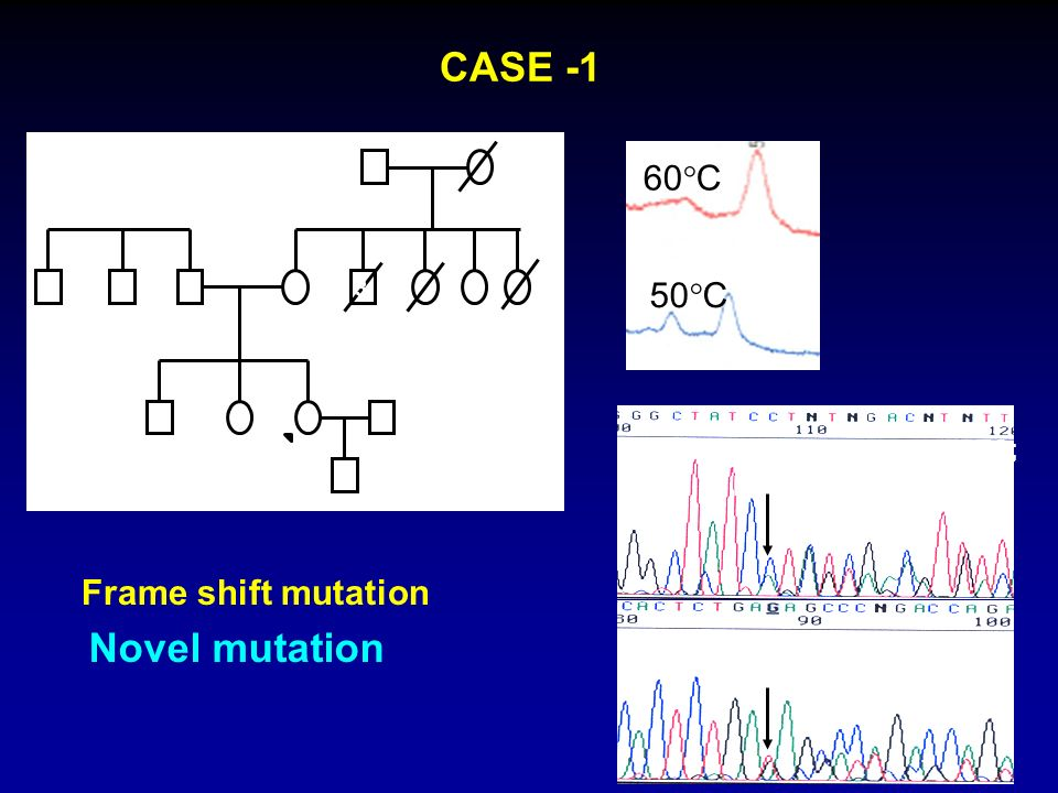 CASE -1 Novel mutation 60C 50C Frame shift mutation