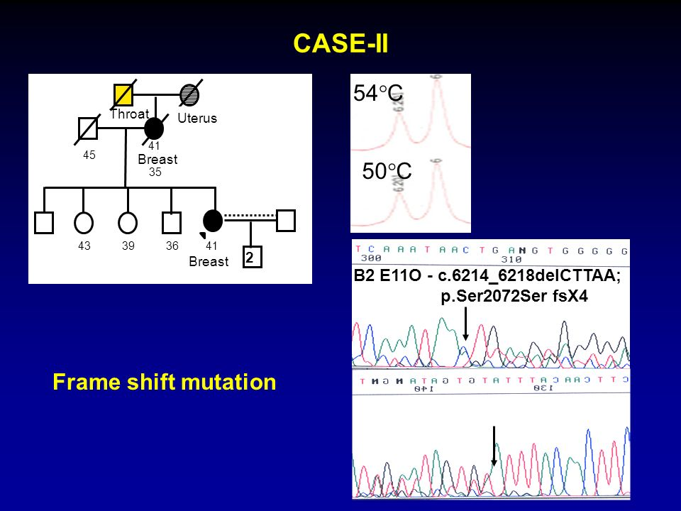 CASE-II 54C 50C Frame shift mutation