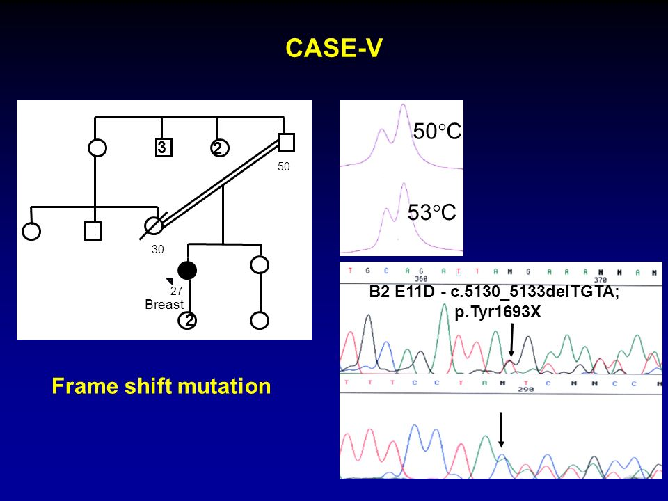 CASE-V 50°C 53°C Frame shift mutation 3