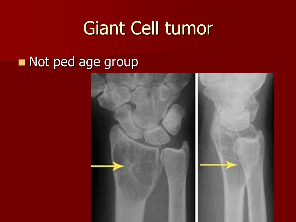 Giant Cell tumor Not ped age group