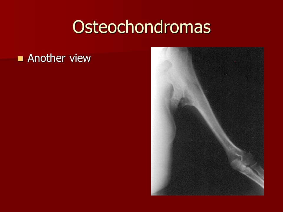Osteochondromas Another view