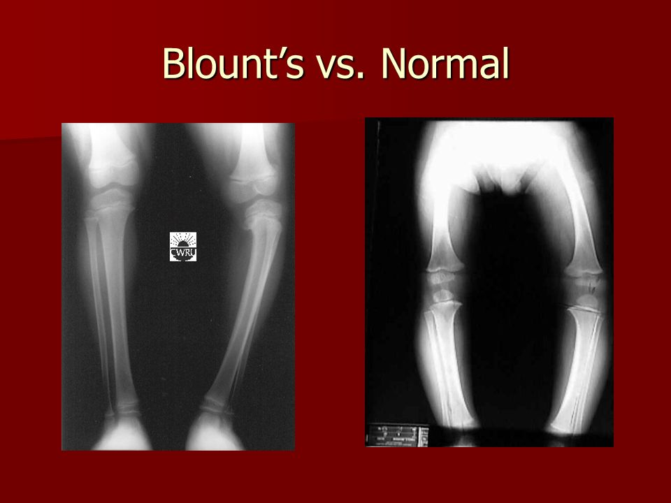 Blount's vs. Normal