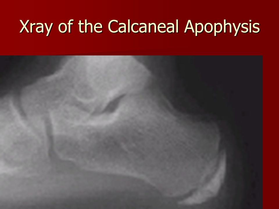 Xray of the Calcaneal Apophysis