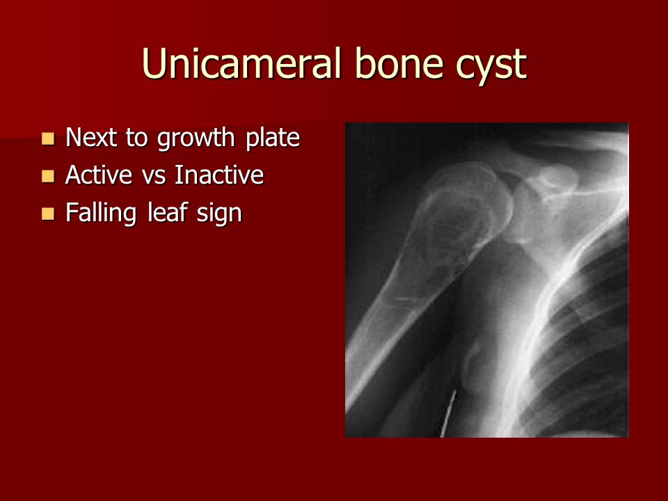 Unicameral bone cyst Next to growth plate Active vs Inactive