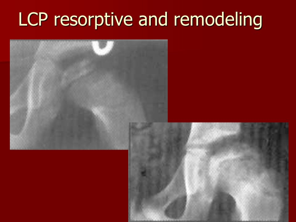 LCP resorptive and remodeling