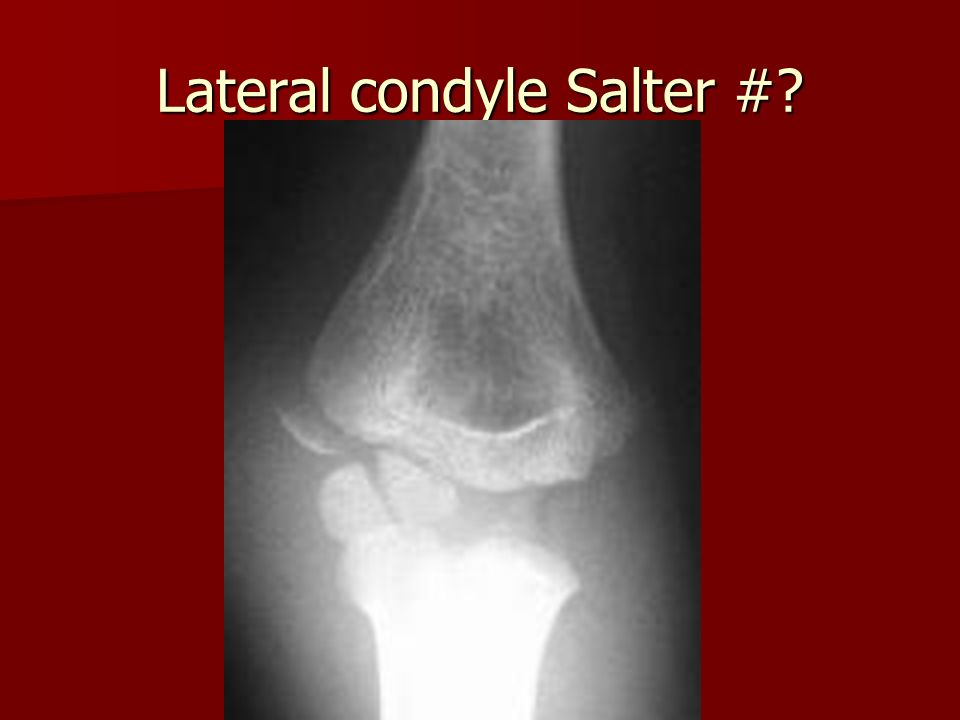 Lateral condyle Salter #