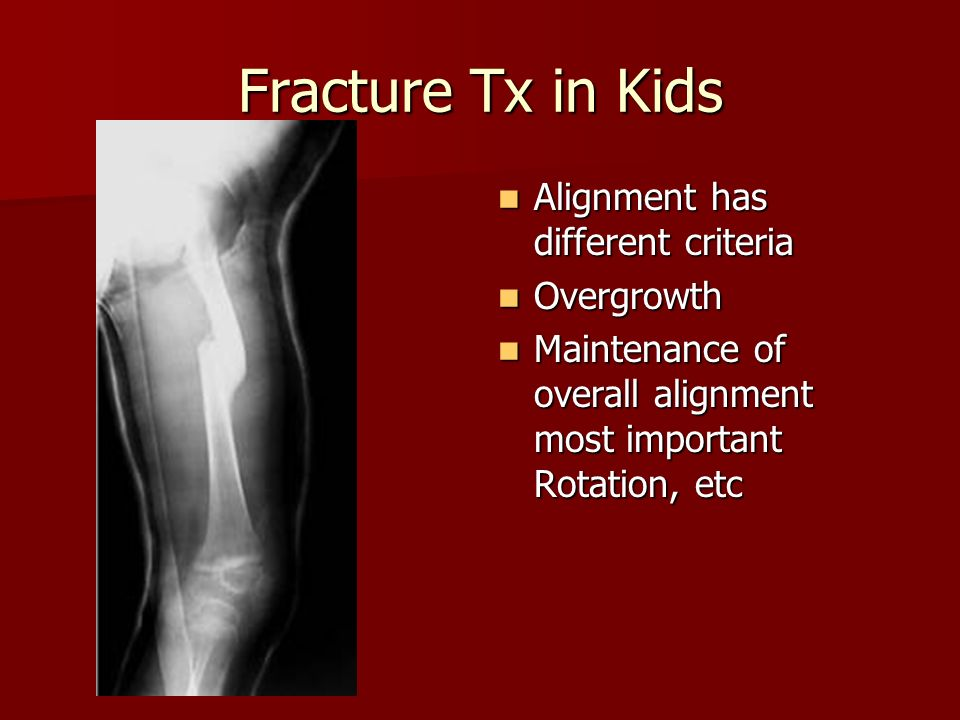 Fracture Tx in Kids Alignment has different criteria Overgrowth