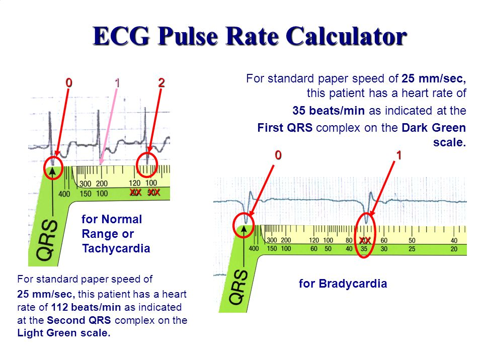 ECG Pulse Rate Calculator