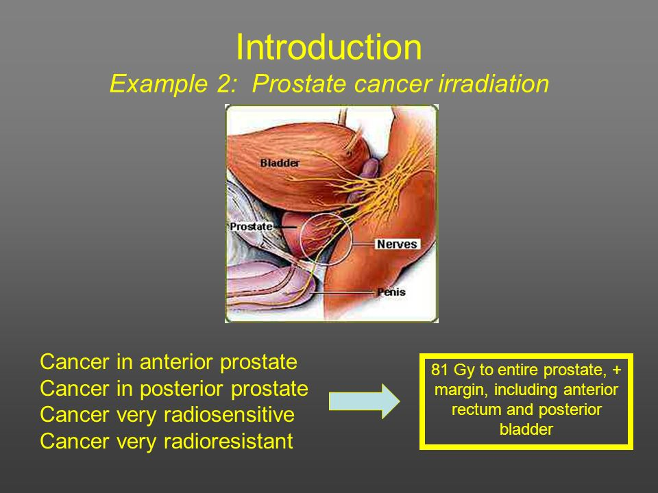 Introduction Example 2: Prostate cancer irradiation