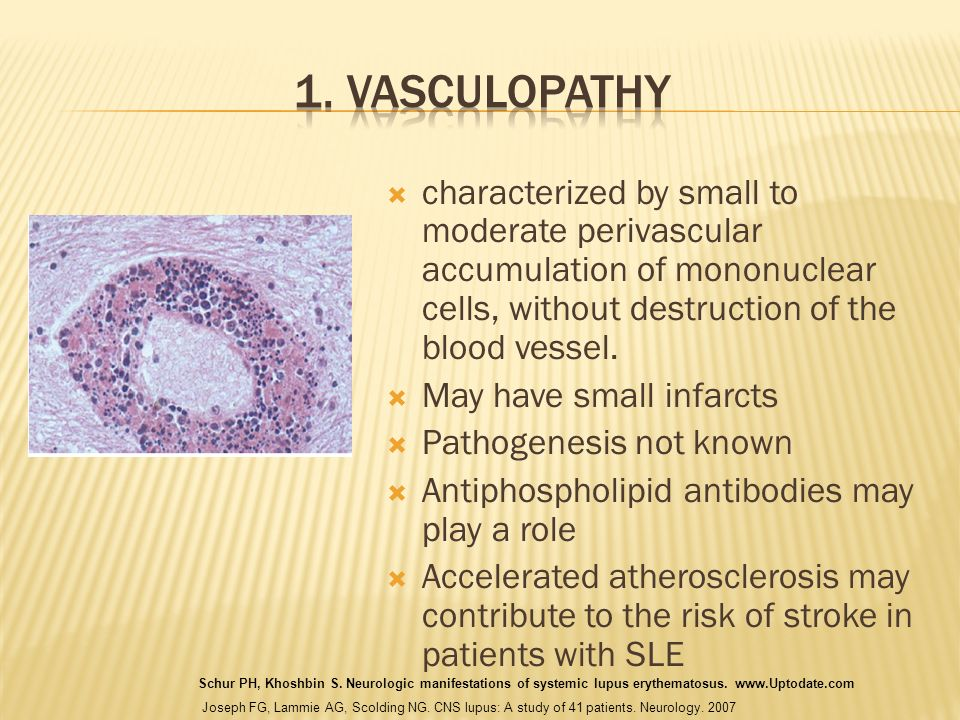 1. Vasculopathy characterized by small to moderate perivascular accumulation of mononuclear cells, without destruction of the blood vessel.