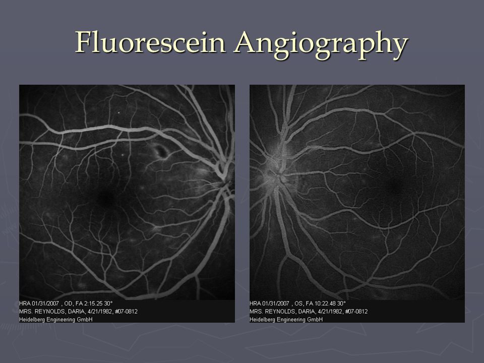 Fluorescein Angiography