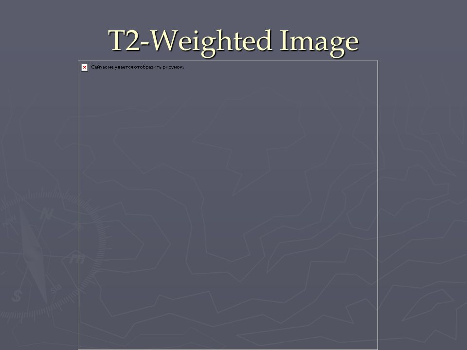 T2-Weighted Image