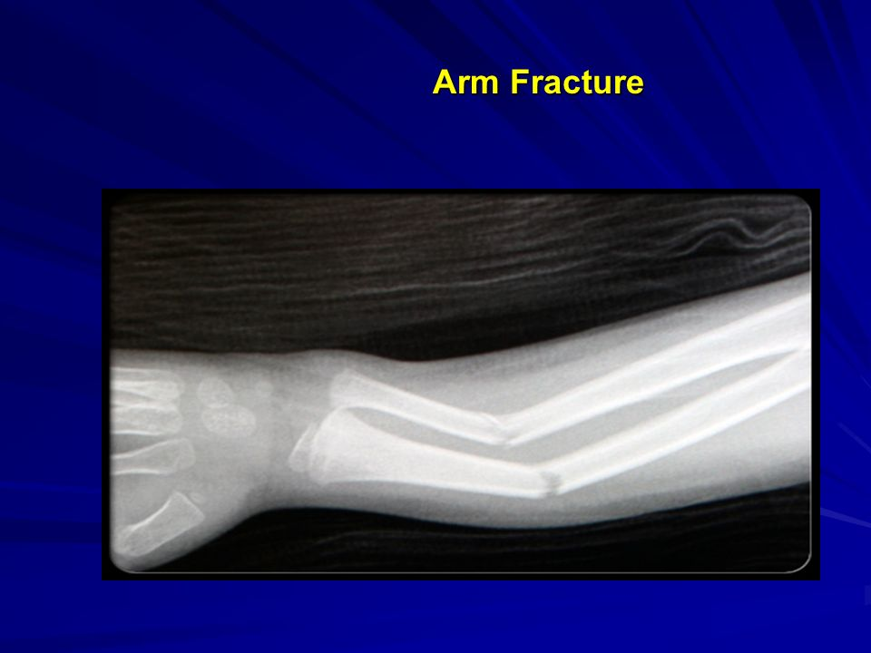 Arm Fracture